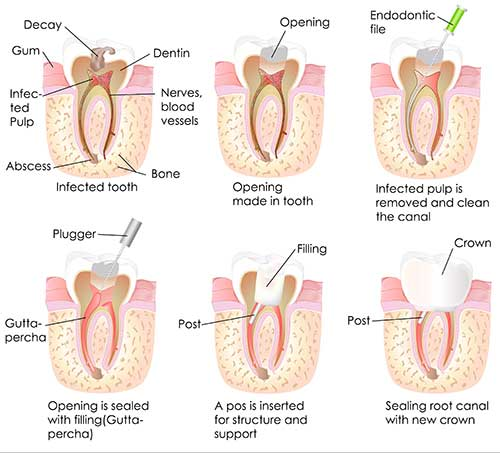 Root Canals in New Hyde Park