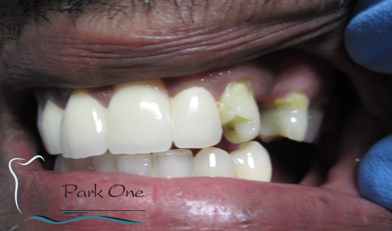 Floral Park Before and After Cosmetic dentistry