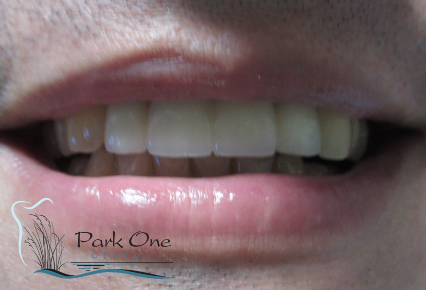 Before and After Cosmetic dentistry  near Garden City