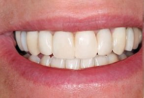 Garden City Before and After Invisalign